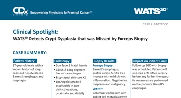 WATS<sup>3D</sup> Detects Crypt Dysplasia that was Missed by Forceps Biopsy
