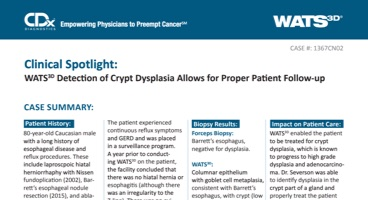 WATS<sup>3D</sup> Detection of Crypt Dysplasia Allows for Proper Patient Follow-up