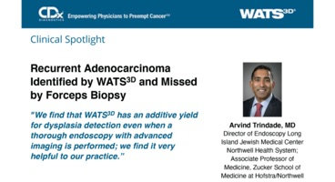 Recurrent Adenocarcinoma Identified by WATS<sup>3D</sup> and Missed by Forceps Biopsy