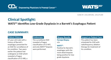 WATS<sup>3D</sup> Identifies Low-Grade Dysplasia in a Barrett's Esophagus Patient